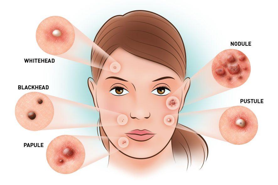 5 jenis jerawat di muka dan tips untuk atasinya