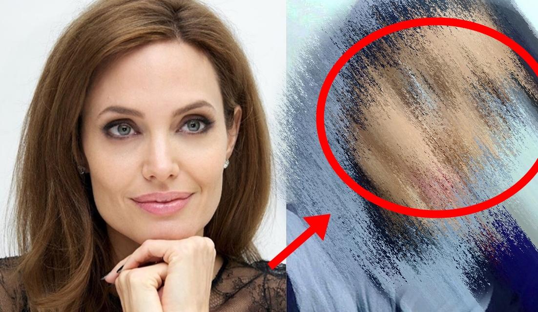 50 pembedahan untuk dapatkan wajah angelina jolie ini hasilnya yang mengejutkan 1