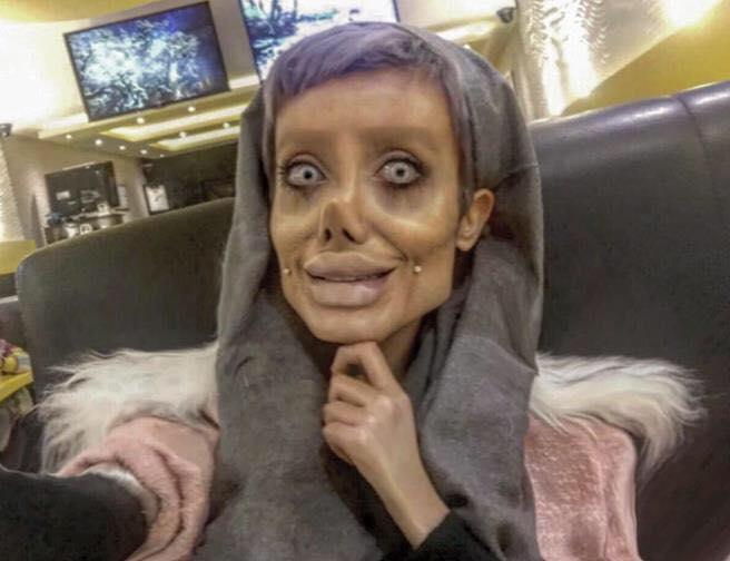 50 pembedahan untuk dapatkan wajah angelina jolie ini hasilnya yang mengejutkan 3