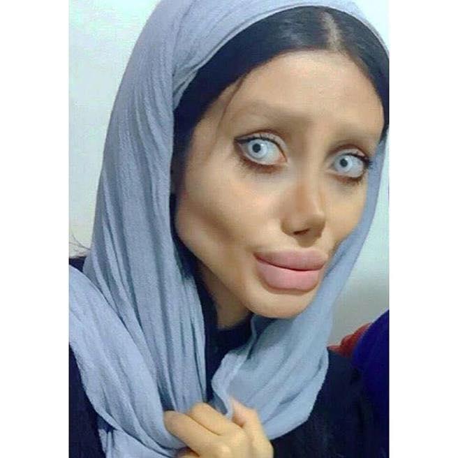 50 pembedahan untuk dapatkan wajah angelina jolie ini hasilnya yang mengejutkan 4