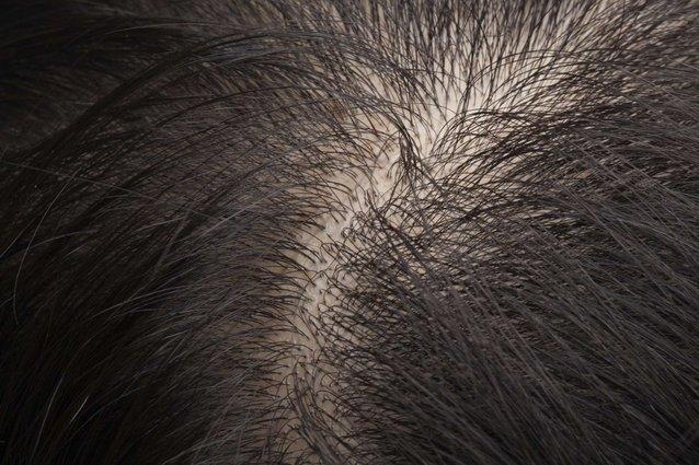 akar rambut