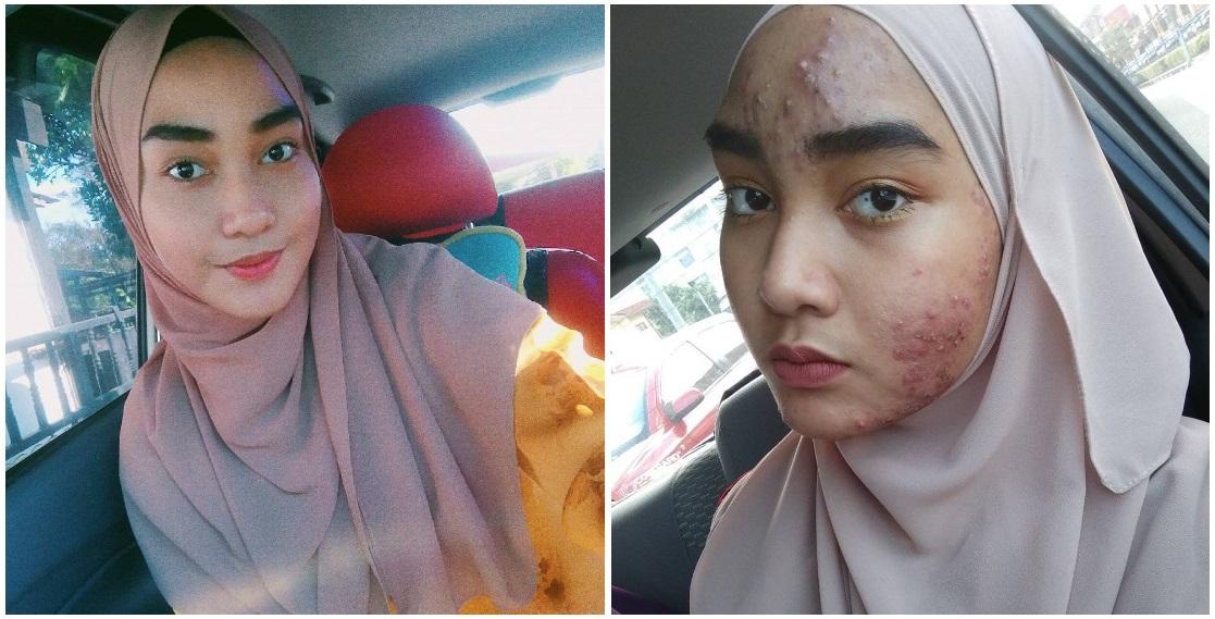 akibat kosmetik