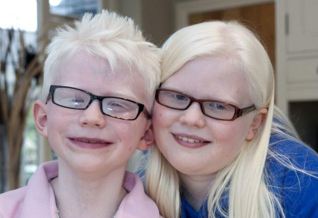 albinisma 7 anomali genetik yang menjadikan manusia unik