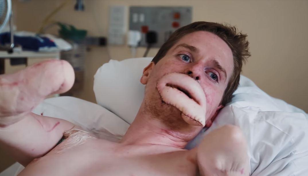 alex lewis lelaki yang menjadi kudung hanya disebabkan selsema 09