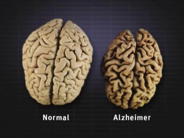 alzheimer pada otak