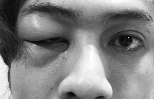 apa terjadi pada mata akim ahmad 1