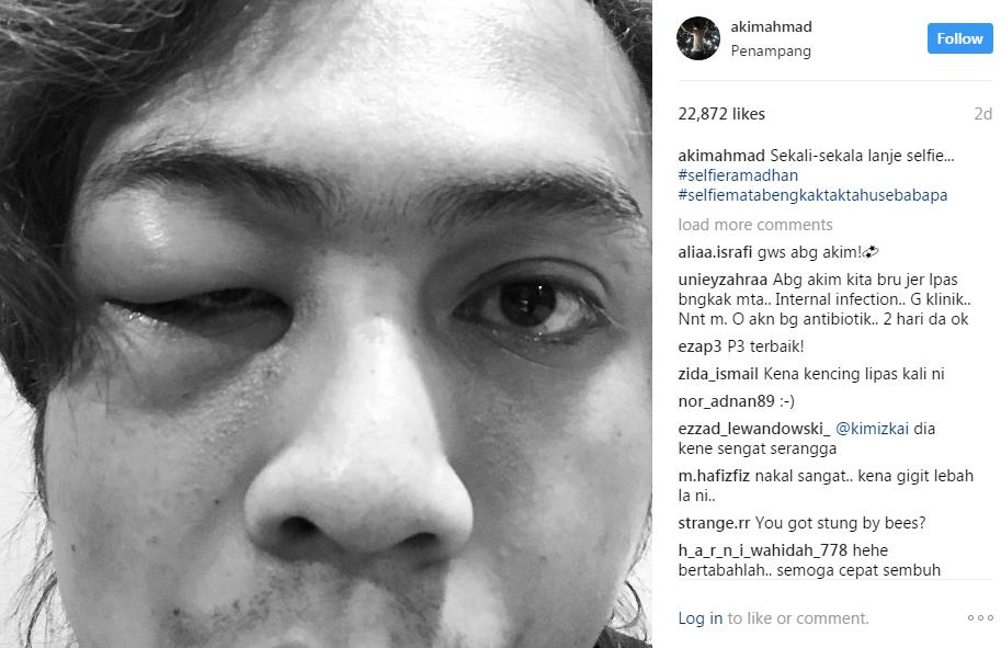 apa terjadi pada mata akim ahmad 2