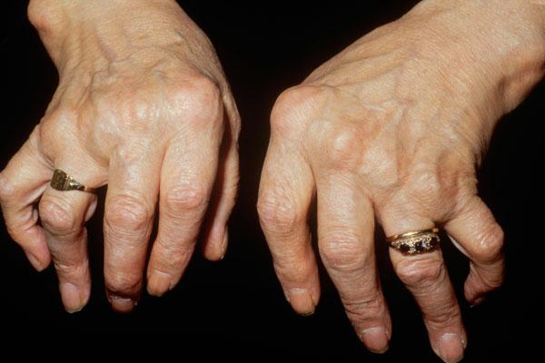 arthritis 8 penyakit kronik yang mampu dirawat oleh ganja