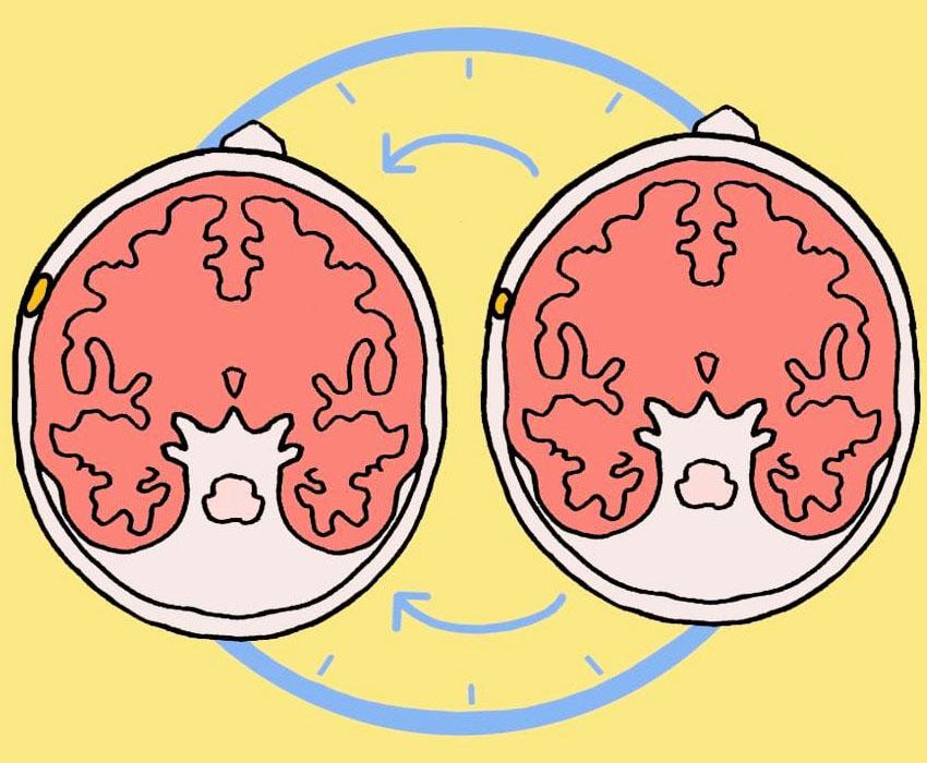 benign meningioma ketumbuhan otak paling kerap berlaku 2