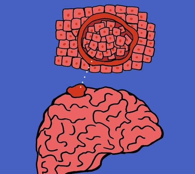 benign meningioma ketumbuhan otak paling kerap berlaku 3