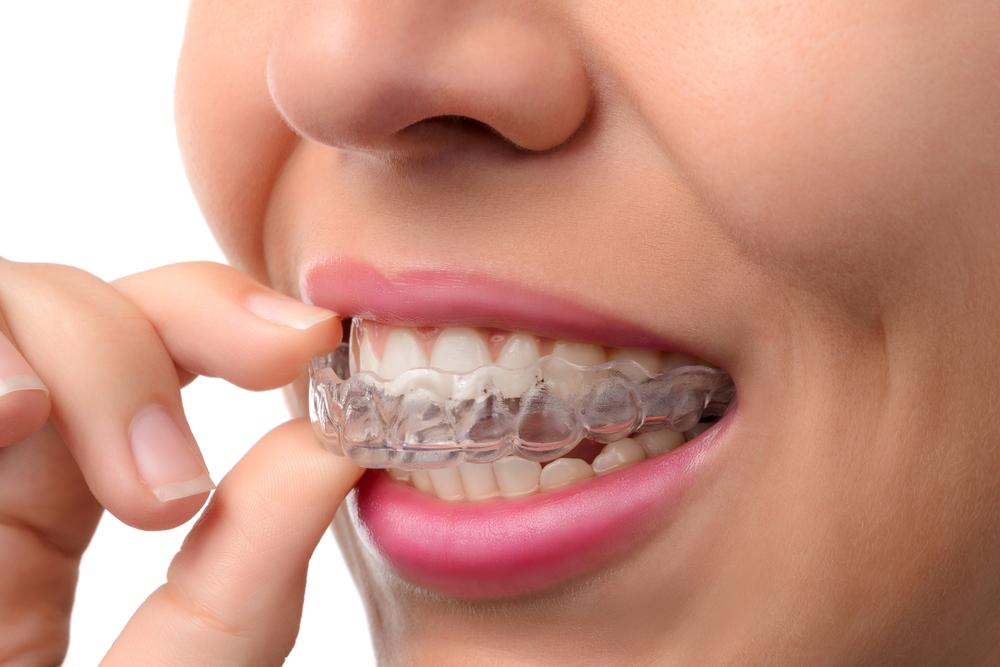 braces retainer pendakap gigi penahan