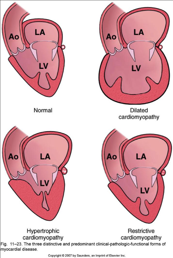 cardiomyopathy1332529933423
