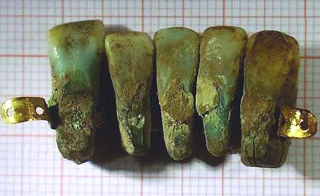 ciptaan gigi palsu pertama barang ini wujud lebih lama daripada yang kita sangka 4