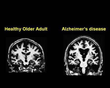 contoh mri pesakit alzheimer dan orang normal