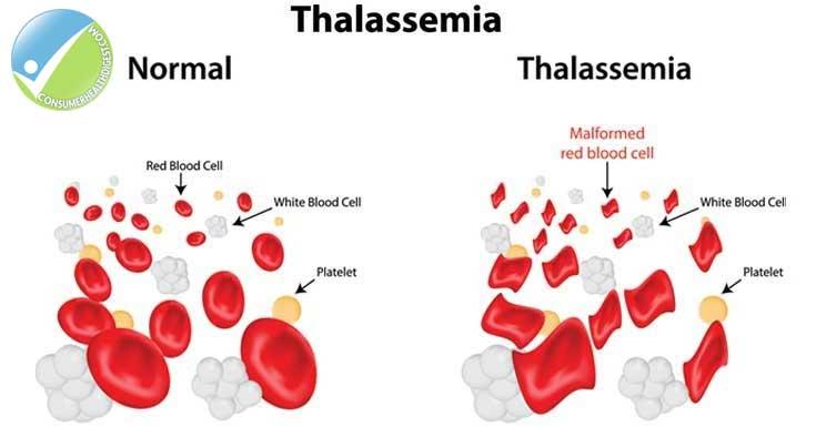 darah pesakit talasemia