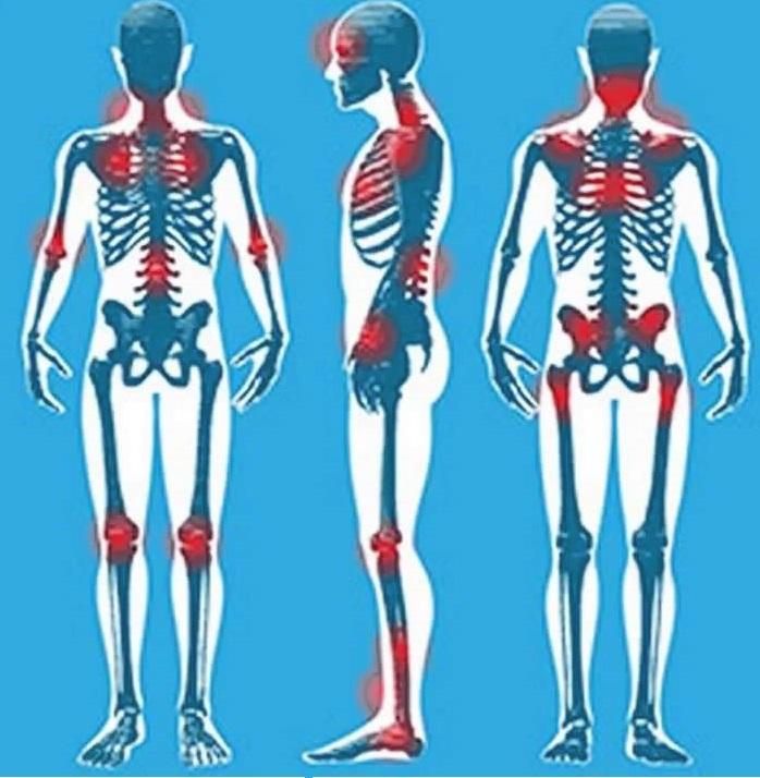 fibromyalgia 8 penyakit kronik yang mampu dirawat oleh ganja
