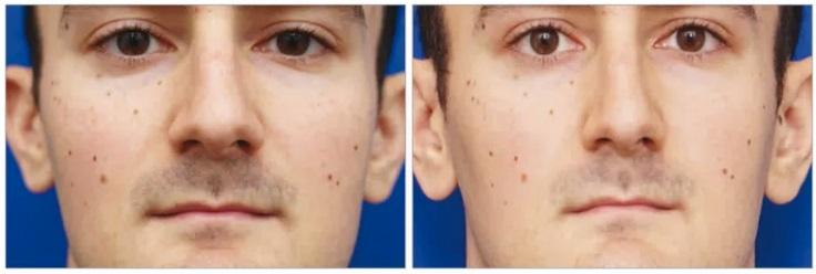 filter gambar pembedahan kosmetik snapchat dysmorphia