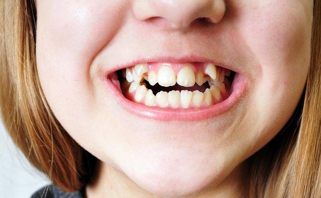 gigi bengkok persepsi kecantikan wanita yang sangat pelik dari seluruh dunia 2