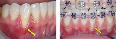 gigi rosak 1nf76