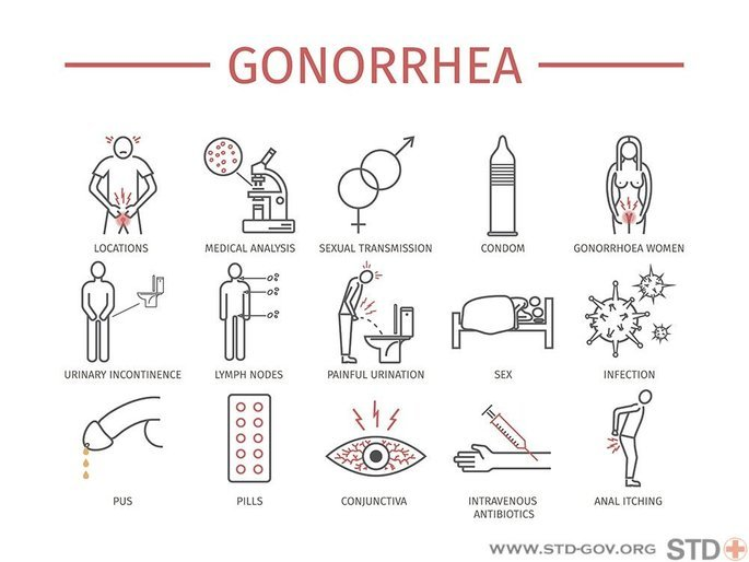 gonorrhea 2
