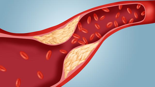 gty atherosclerosis cholesterol plaque artery ll 111114 wmain