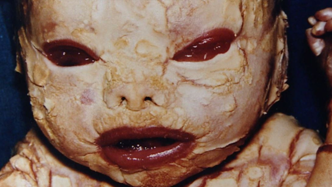 harlequin ichthyosis penyakit kulit genetik dahsyat yang boleh membunuh 2