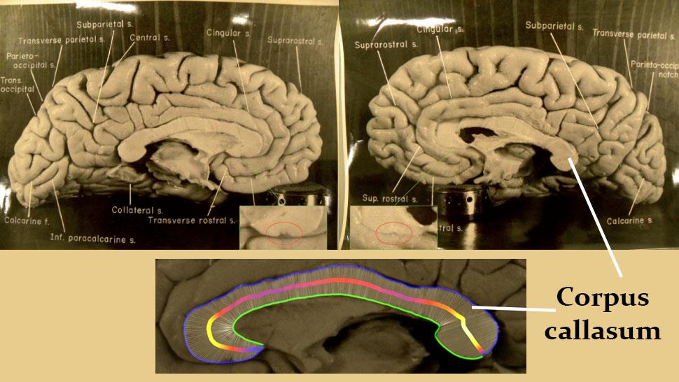 hasil bedah otak albert einstein 275