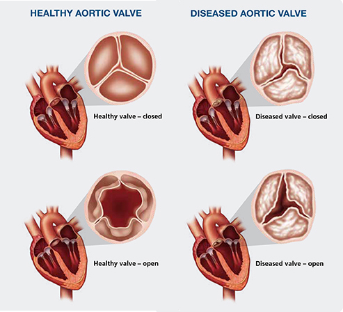 heartvalves