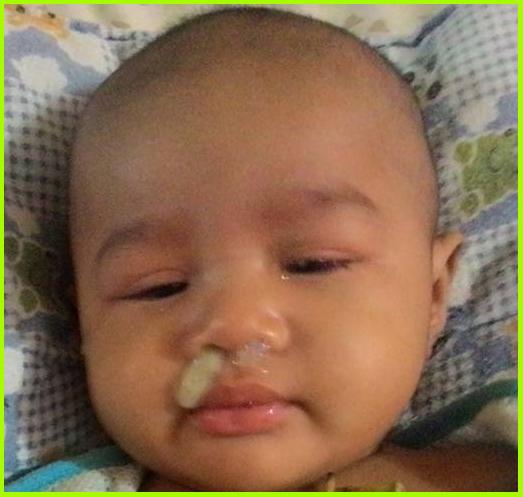 hingus bayi
