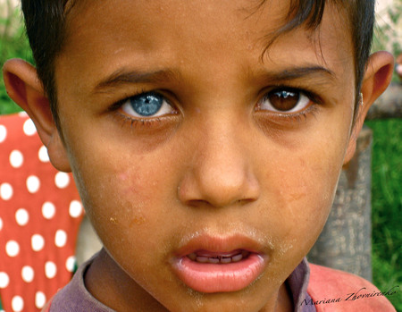 human with heterochromia