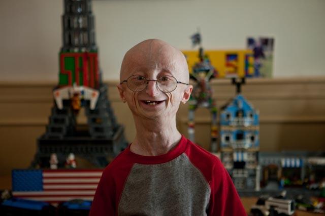 hutchinson gilford progeria 2