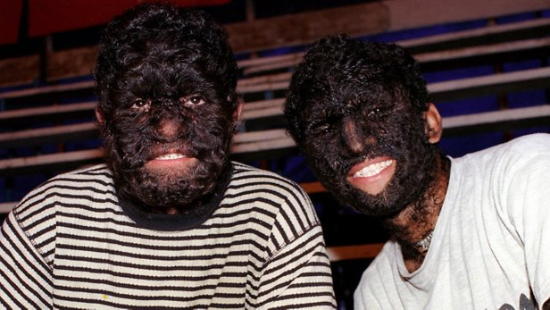 hypertrichosis 2