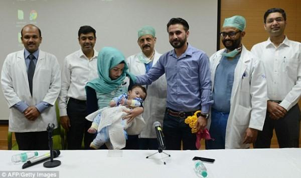 iluminasi bayi karam pembedahan iraq india2 665