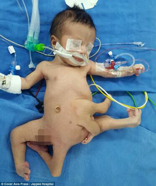 iluminasi bayi karam pembedahan iraq india5