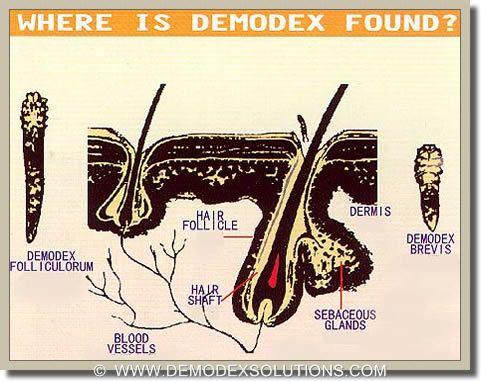 iluminasi demodex kutu wajah2 132
