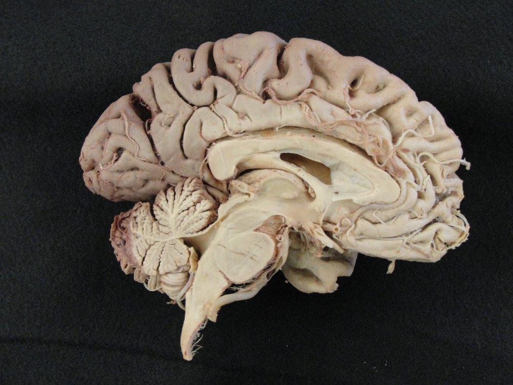 iluminasi otak kiri kanan mitos2