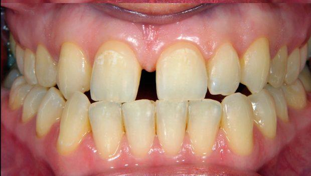 ini 2 jenis rawatan pemutihan gigi 3