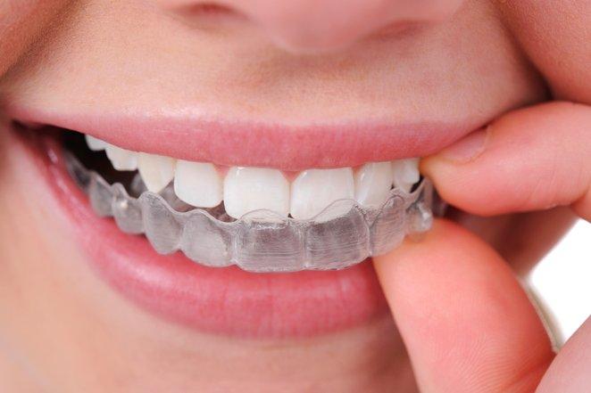 ini 2 jenis rawatan pemutihan gigi 7