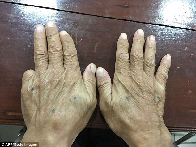 jari kelingking kudung ketua yakuza