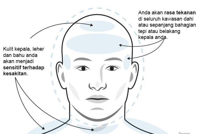 jenis jenis sakit kepala dan cara mengubatinya 2