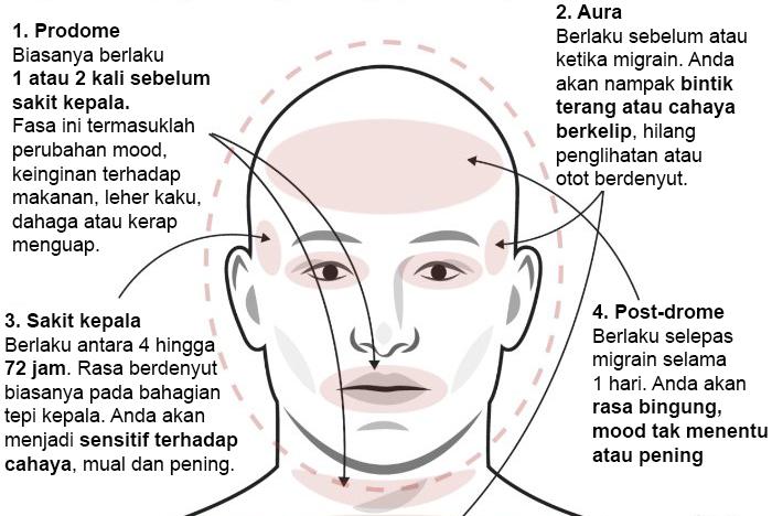 jenis jenis sakit kepala dan cara mengubatinya 3
