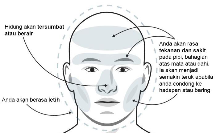 jenis jenis sakit kepala dan cara mengubatinya