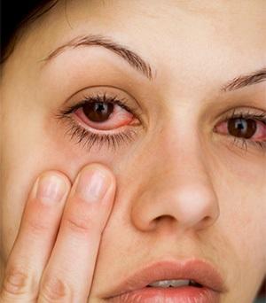 kalau beli kanta lekap yang bukan dari doktor nanti anda boleh dapat jangkitan mata