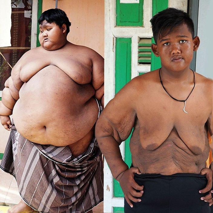 Apa Yang Berlaku Kepada Kulit Berlebihan Selepas Kehilangan Berat Badan Dengan Drastik Iluminasi