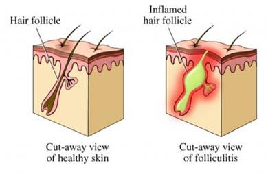kecederaan pada kulit akibat cukur