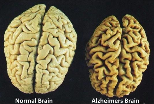 kelebihan berpuasa alzheimer