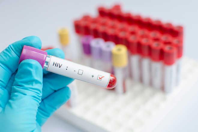 keputusan test hiv 177