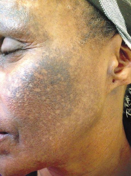 kesan merkuri dalam produk kosmetik terhadap badan dan alam sekitar 6