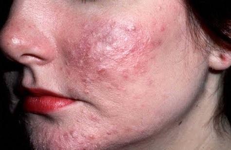 kesan merkuri dalam produk kosmetik terhadap badan dan alam sekitar 8
