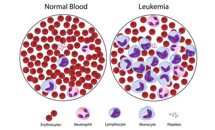 kesan nitrat dalam air masak kepada kesihatan leukemia